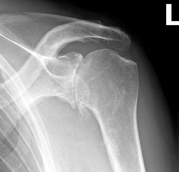 Schultergelenksarthrose Röntgenbild