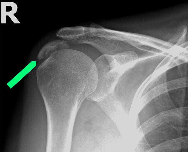 Röntgenbild einer Kalkschulter
