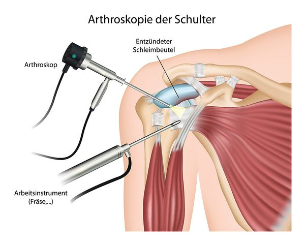 Arthroskopie der Schulter
